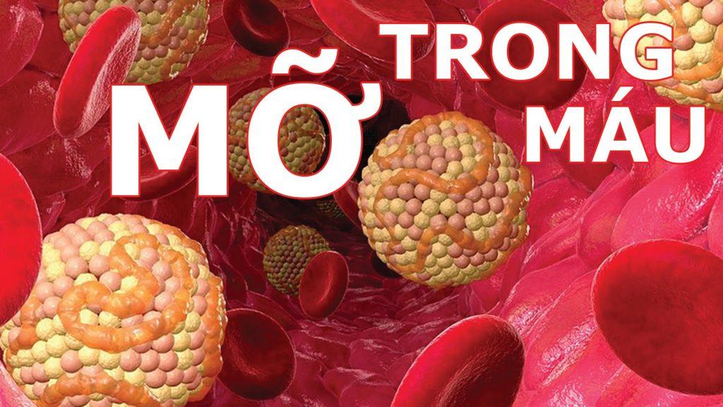 Những cách điều trị mỡ máu hiệu quả nhất hiện nay